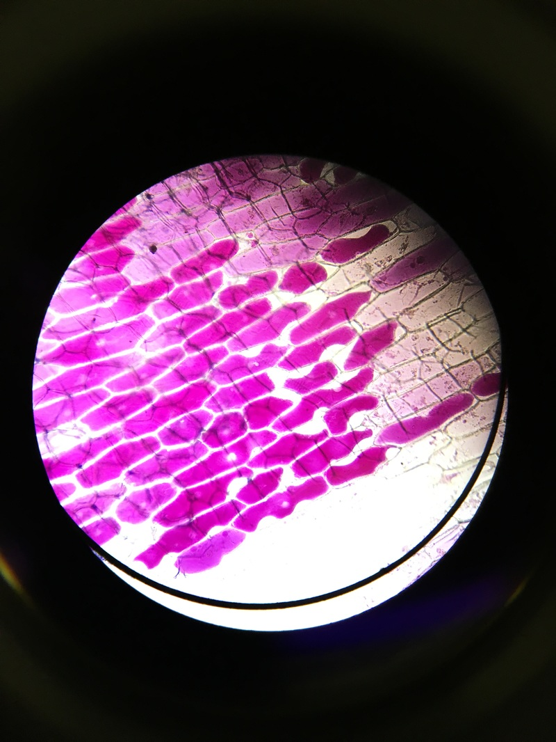 plasmolysis on onion cell Cell transport lab – plasmolysis in onion cells purpose: the purpose of this activity is to investigate the effects of a hypertonic solution on the cells of the red onion.